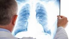 Боротьба з туберкульозом у Борисполі: районна лікарня потребує пересувний флюорограф